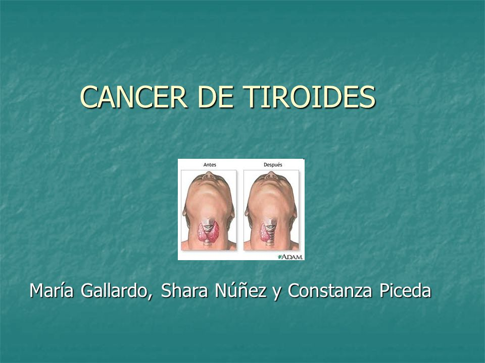 INDICE 1.El cáncer tiroideo. 2. Epidemiología. 3.