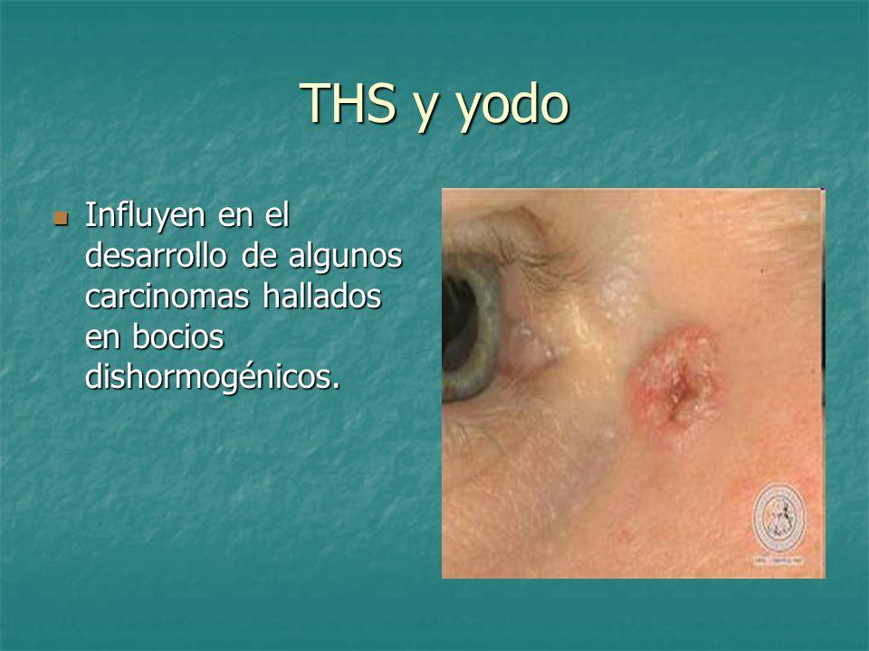 THS y yodo Influyen en el desarrollo de algunos carcinomas hallados en bocios dishormogénicos.