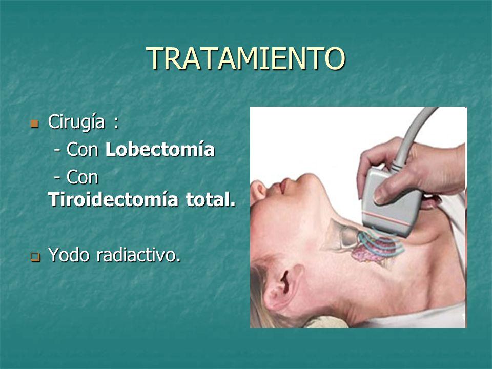 TRATAMIENTO Cirugía : Cirugía : - Con Lobectomía - Con Lobectomía - Con Tiroidectomía total.