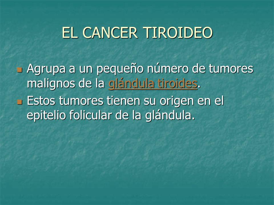 Cáncer Papilar de tiroides Es el más común.Es el más común.
