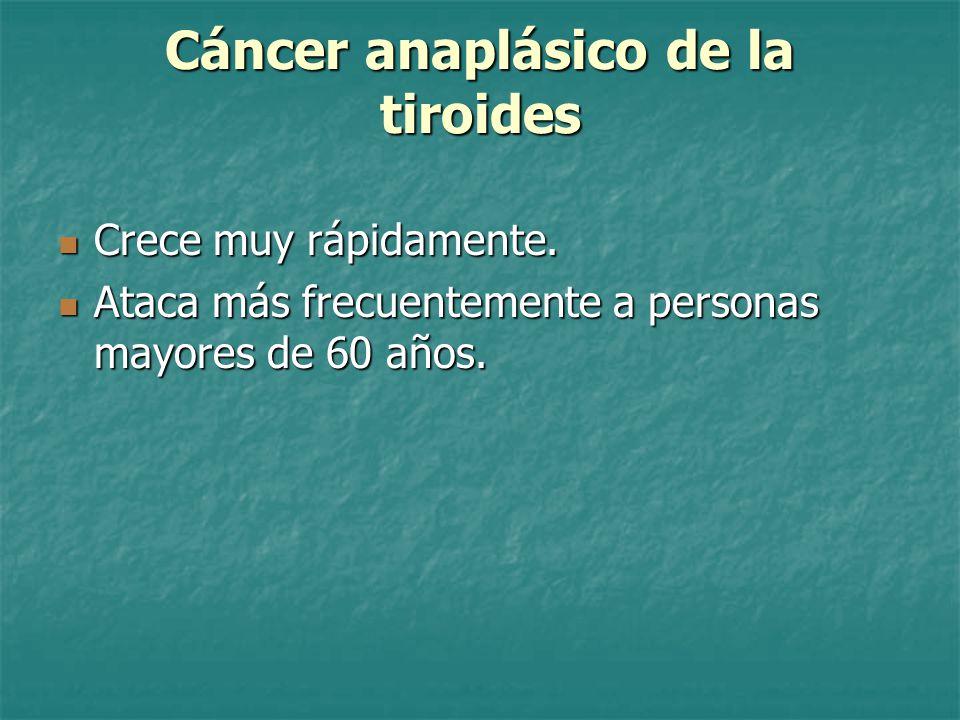 Cáncer anaplásico de la tiroides Crece muy rápidamente.
