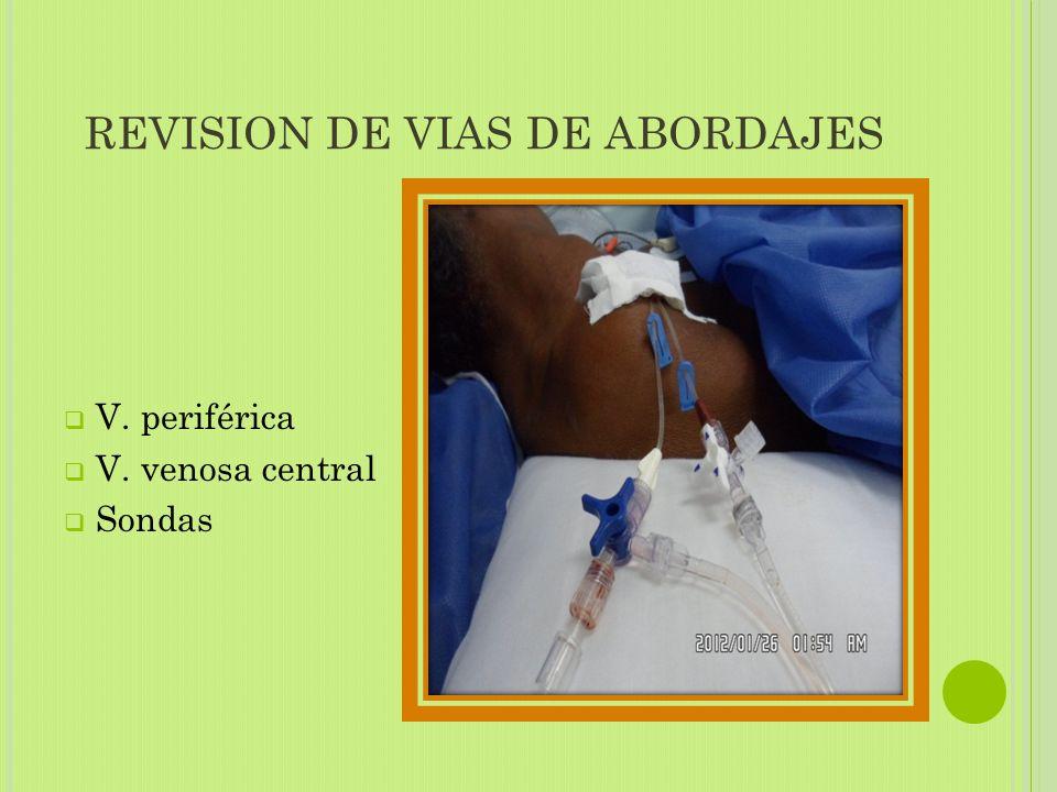 REVISION DE VIAS DE ABORDAJES  V. periférica  V. venosa central  Sondas