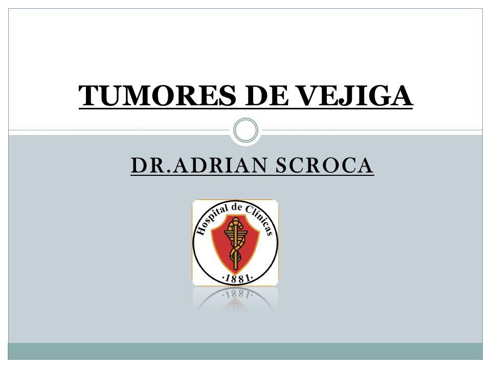 DR.ADRIAN SCROCA TUMORES DE VEJIGA