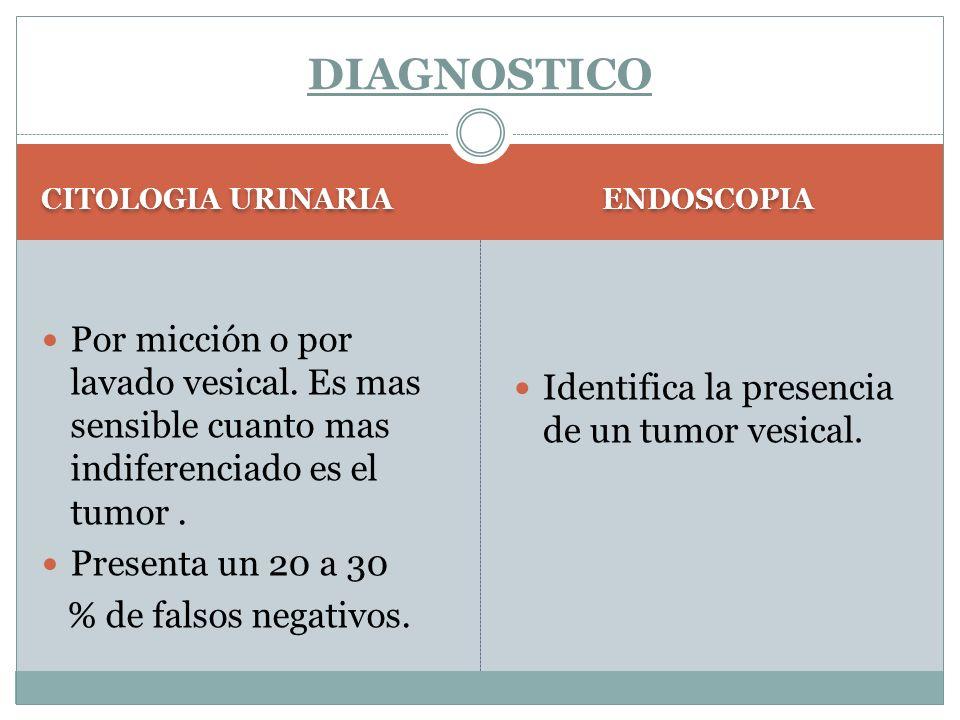 CITOLOGIA URINARIA ENDOSCOPIA Por micción o por lavado vesical. Es mas sensible cuanto mas indiferenciado es el tumor. Presenta un 20 a 30 % de falsos
