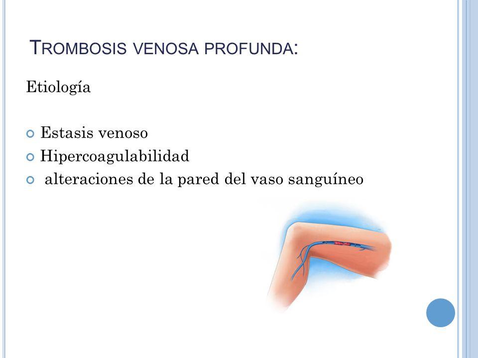 T ROMBOSIS VENOSA PROFUNDA : Etiología Estasis venoso Hipercoagulabilidad alteraciones de la pared del vaso sanguíneo