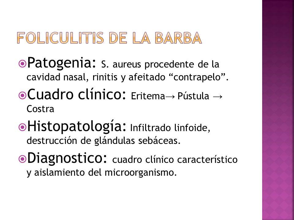 """ Patogenia: S. aureus procedente de la cavidad nasal, rinitis y afeitado """"contrapelo"""".  Cuadro clínico: Eritema → Pústula → Costra  Histopatología:"""