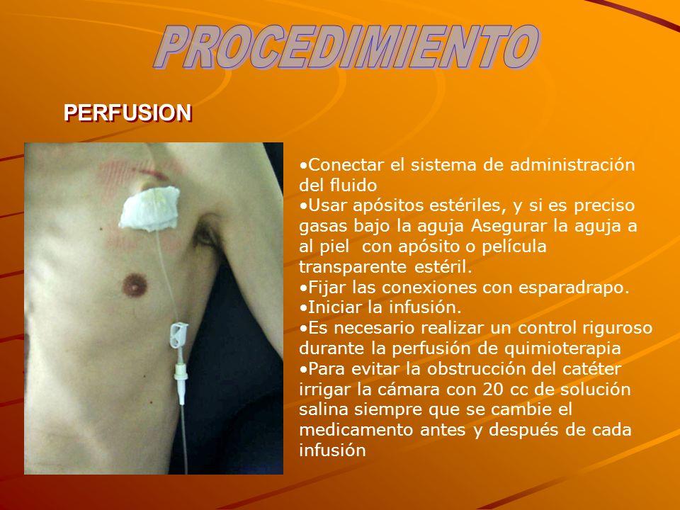 PERFUSION Conectar el sistema de administración del fluido Usar apósitos estériles, y si es preciso gasas bajo la aguja Asegurar la aguja a al piel co