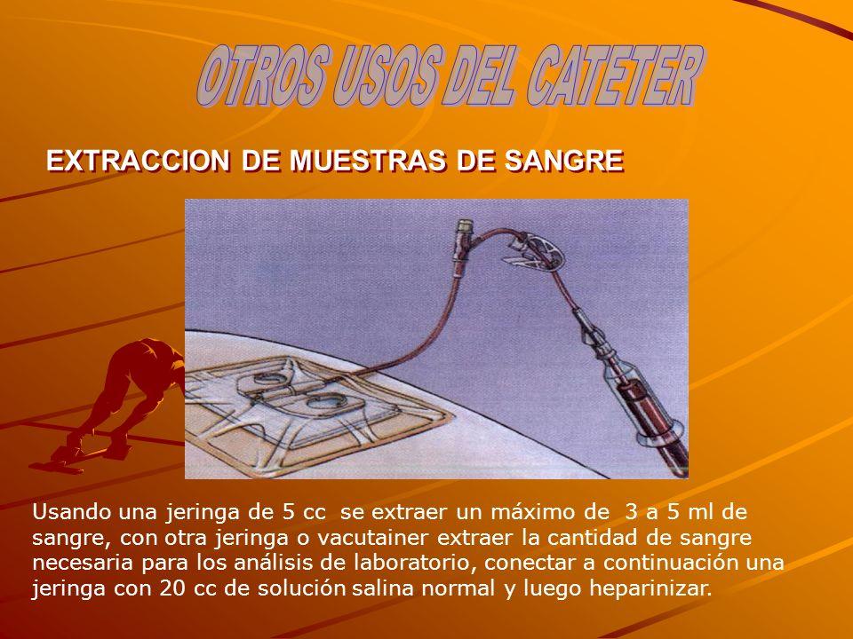 EXTRACCION DE MUESTRAS DE SANGRE Usando una jeringa de 5 cc se extraer un máximo de 3 a 5 ml de sangre, con otra jeringa o vacutainer extraer la canti