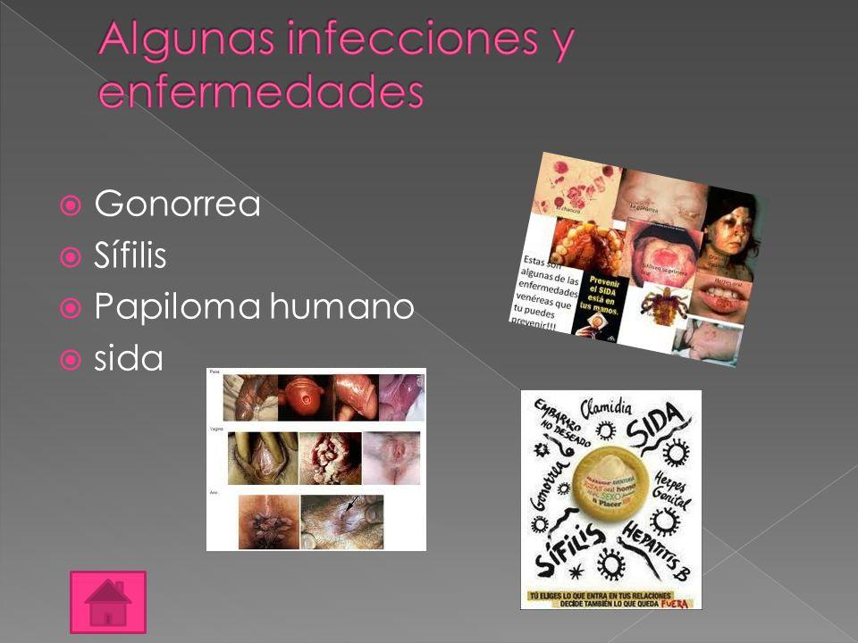  Gonorrea  Sífilis  Papiloma humano  sida