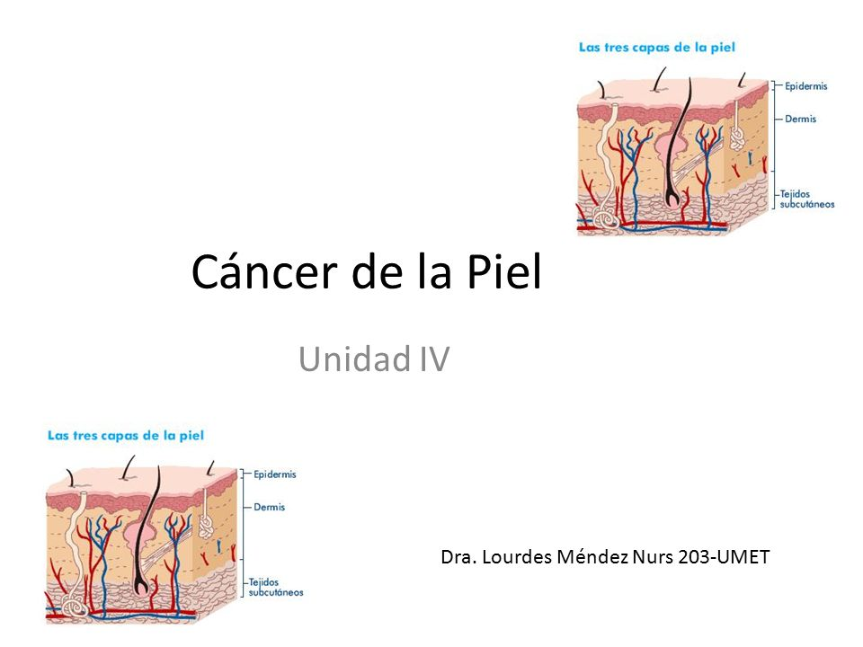 Cáncer de la Piel Unidad IV Dra. Lourdes Méndez Nurs 203-UMET