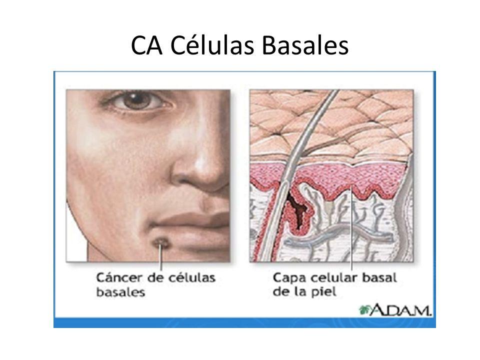 CA Células Basales