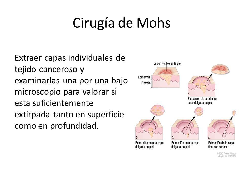 Otras Cirugías Excisión simple = extirpar el tumos y porción de tejido circundante Criocirugía = congelar con nitrógeno liquido para destruir células malignas, solo en lesiones precancerosas.