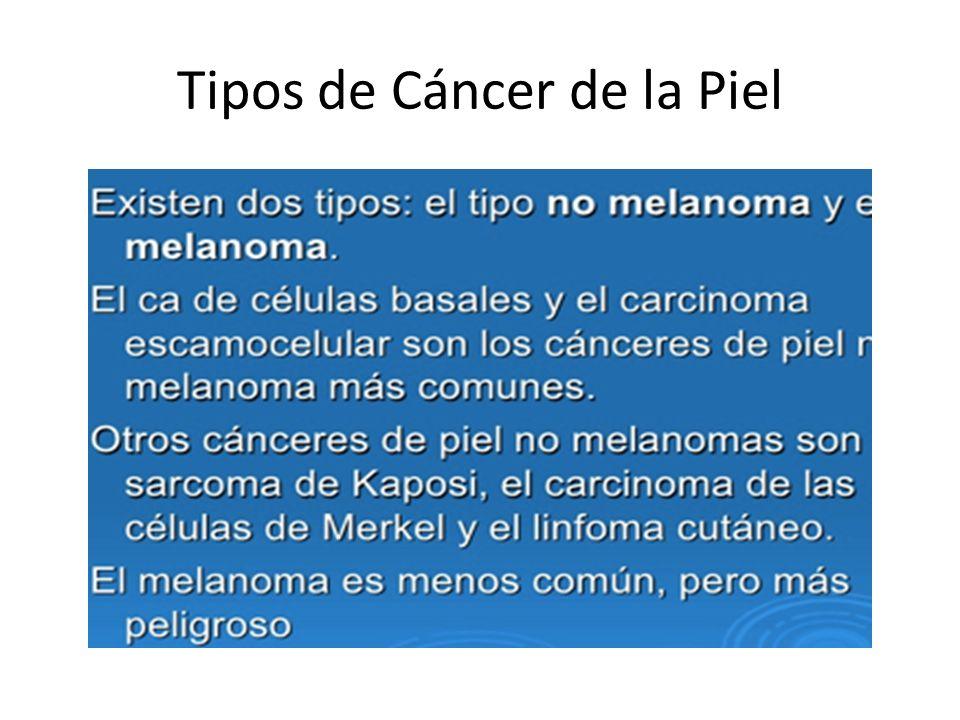 No Melanoma -Es el tipo mas frecuente.