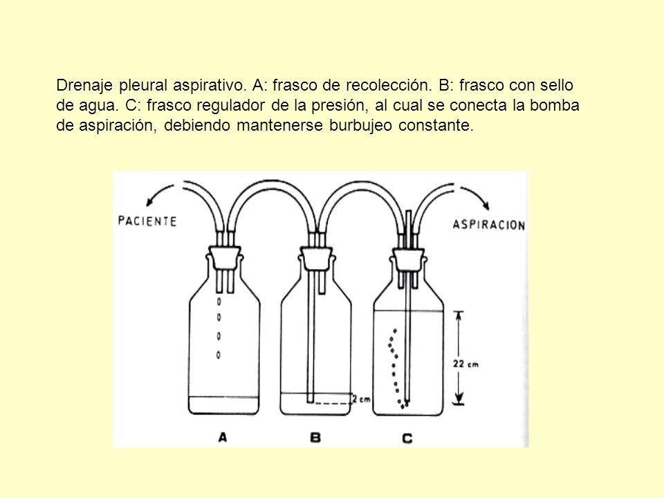 Drenaje pleural aspirativo. A: frasco de recolección. B: frasco con sello de agua. C: frasco regulador de la presión, al cual se conecta la bomba de a
