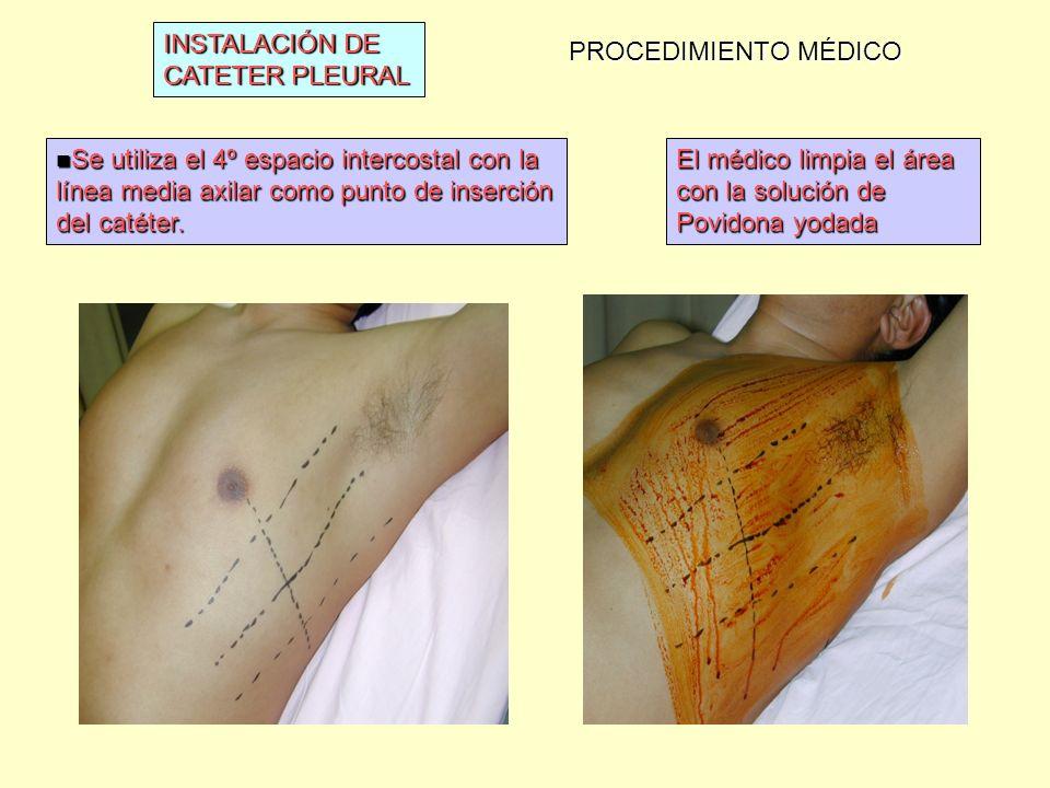 INSTALACIÓN DE CATETER PLEURAL PROCEDIMIENTO MÉDICO Se utiliza el 4º espacio intercostal con la línea media axilar como punto de inserción del catéter.