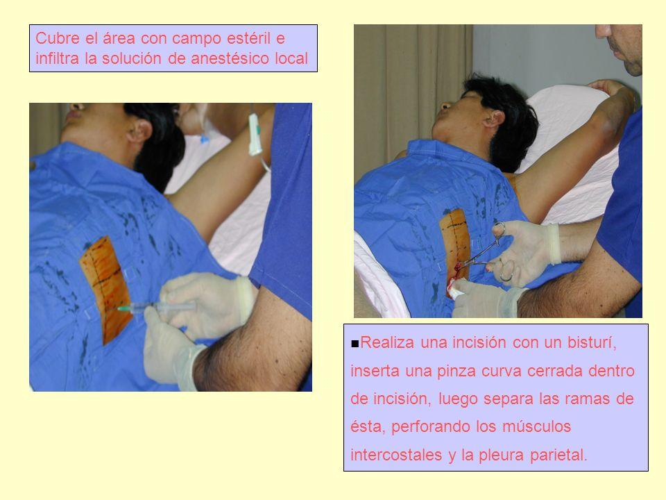 Cubre el área con campo estéril e infiltra la solución de anestésico local Realiza una incisión con un bisturí, inserta una pinza curva cerrada dentro