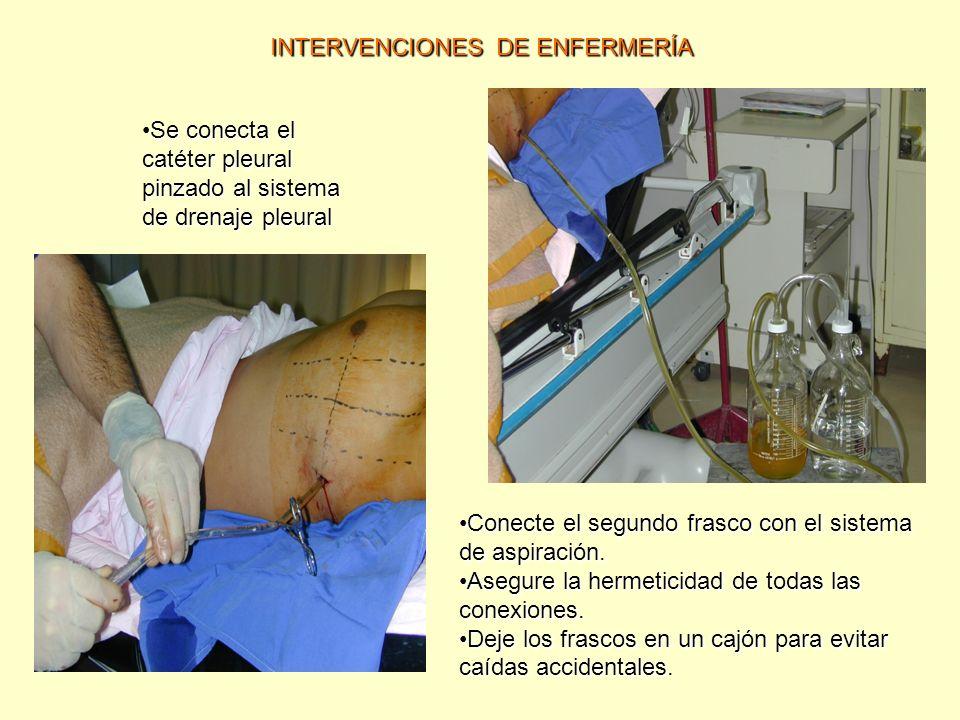 INTERVENCIONES DE ENFERMERÍA Se conecta el catéter pleural pinzado al sistema de drenaje pleuralSe conecta el catéter pleural pinzado al sistema de dr