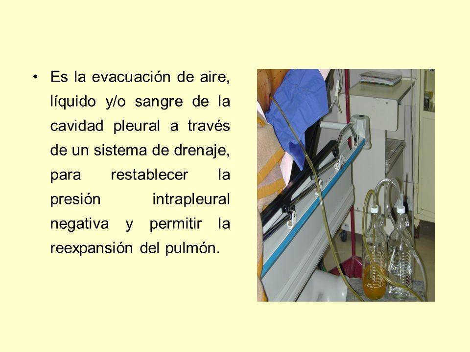 Es la evacuación de aire, líquido y/o sangre de la cavidad pleural a través de un sistema de drenaje, para restablecer la presión intrapleural negativa y permitir la reexpansión del pulmón.