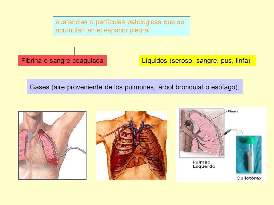 sustancias o partículas patológicas que se acumulan en el espacio pleural Fibrina o sangre coagulada Líquidos (seroso, sangre, pus, linfa) Gases (aire proveniente de los pulmones, árbol bronquial o esófago).