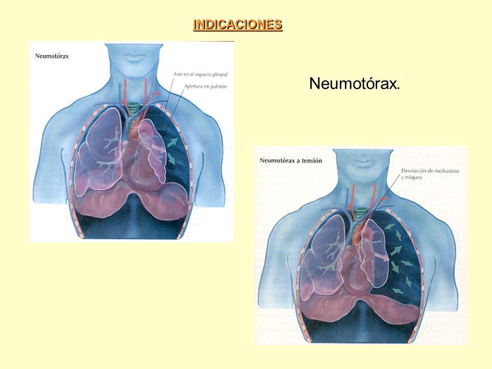 Hemotórax Hemoneumotórax Neumectomía - Lobectomía EmpiemasDerrames pleurales por cáncer