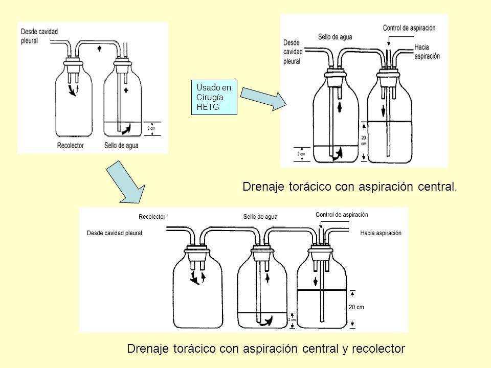 Drenaje torácico con aspiración central. Drenaje torácico con aspiración central y recolector Usado en Cirugía HETG