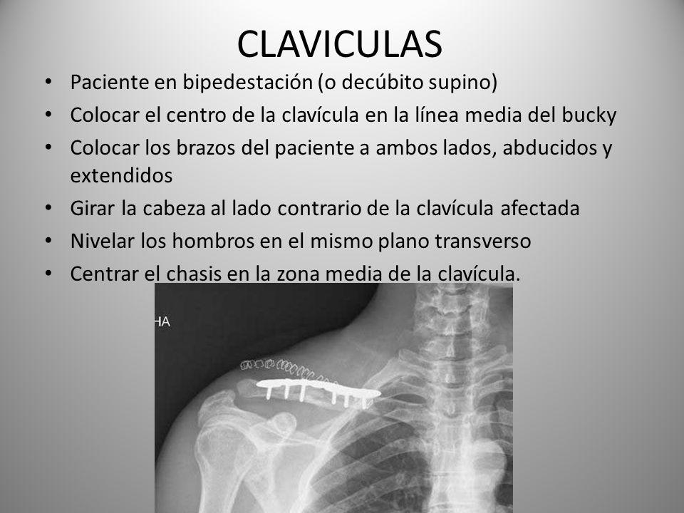 CLAVICULAS Paciente en bipedestación (o decúbito supino) Colocar el centro de la clavícula en la línea media del bucky Colocar los brazos del paciente
