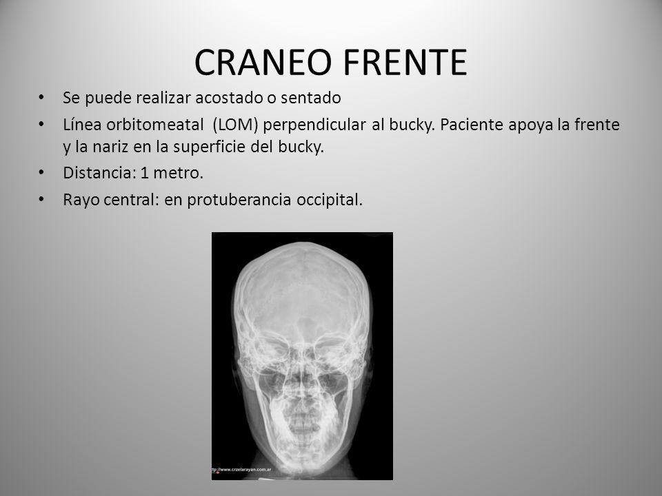 CRANEO FRENTE Se puede realizar acostado o sentado Línea orbitomeatal (LOM) perpendicular al bucky. Paciente apoya la frente y la nariz en la superfic