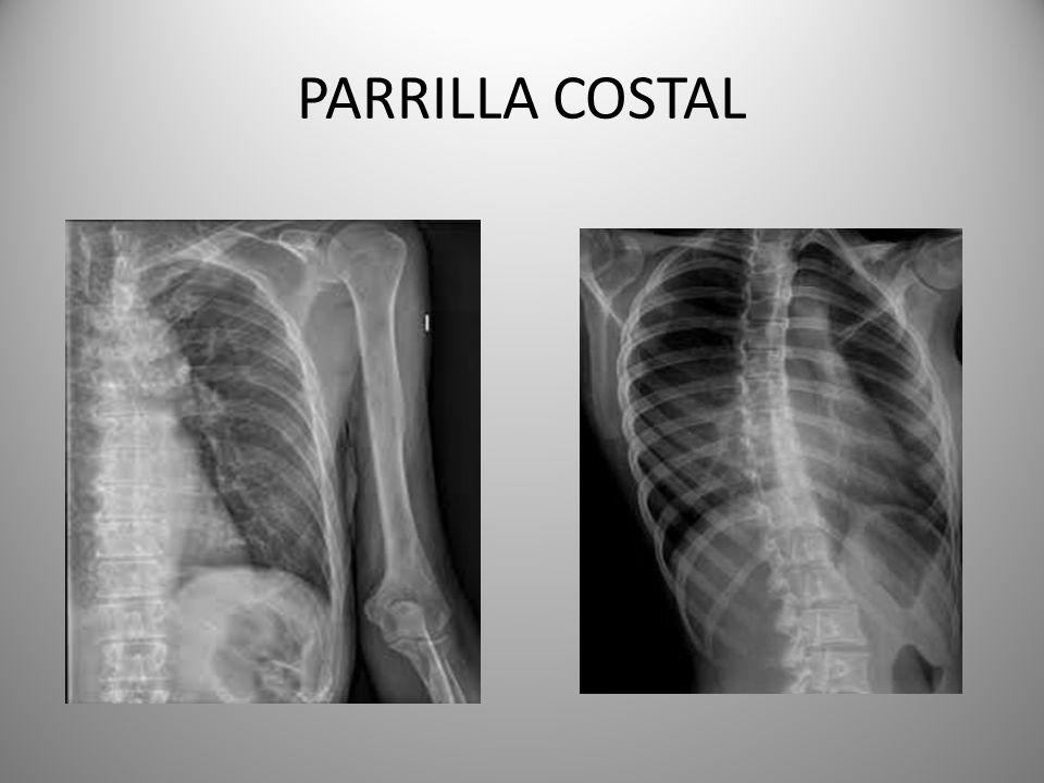 PARRILLA COSTAL