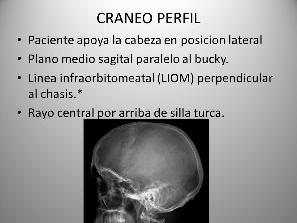 CRANEO PERFIL Paciente apoya la cabeza en posicion lateral Plano medio sagital paralelo al bucky. Linea infraorbitomeatal (LIOM) perpendicular al chas