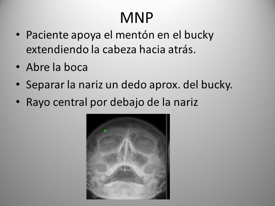 MNP Paciente apoya el mentón en el bucky extendiendo la cabeza hacia atrás. Abre la boca Separar la nariz un dedo aprox. del bucky. Rayo central por d
