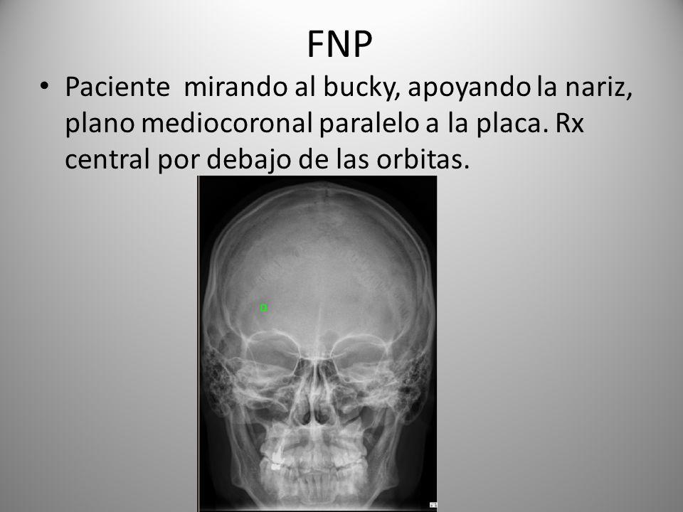 FNP Paciente mirando al bucky, apoyando la nariz, plano mediocoronal paralelo a la placa. Rx central por debajo de las orbitas.