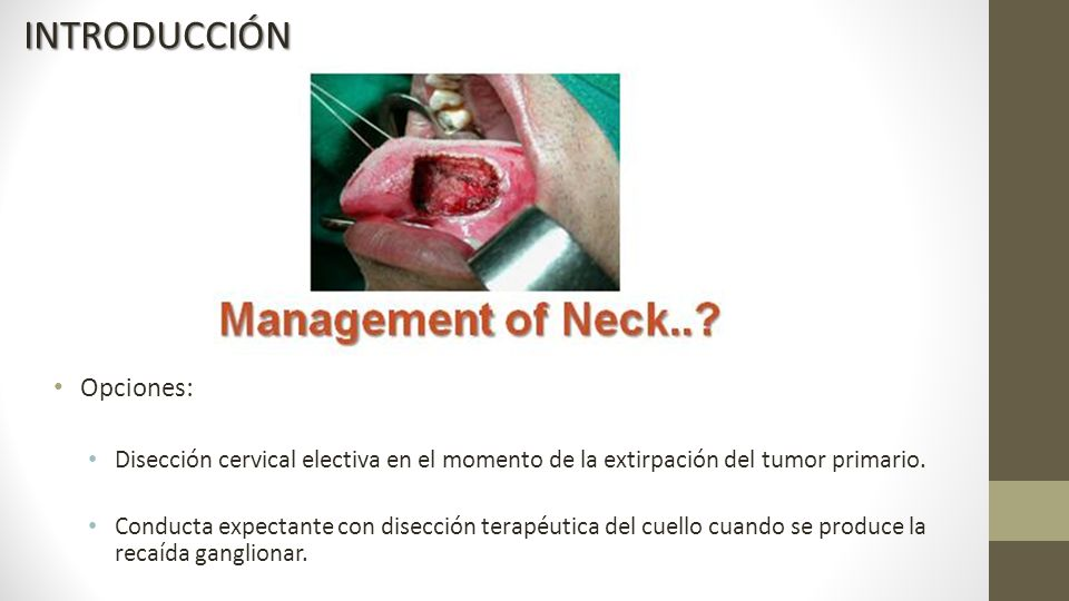 Opciones: Disección cervical electiva en el momento de la extirpación del tumor primario.