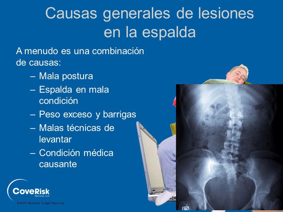 © BLR ® —Business & Legal Resources Causas generales de lesiones en la espalda A menudo es una combinación de causas: –Mala postura –Espalda en mala c