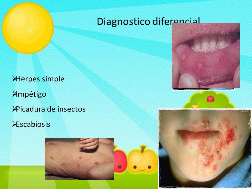 Diagnostico diferencial  Herpes simple  Impétigo  Picadura de insectos  Escabiosis