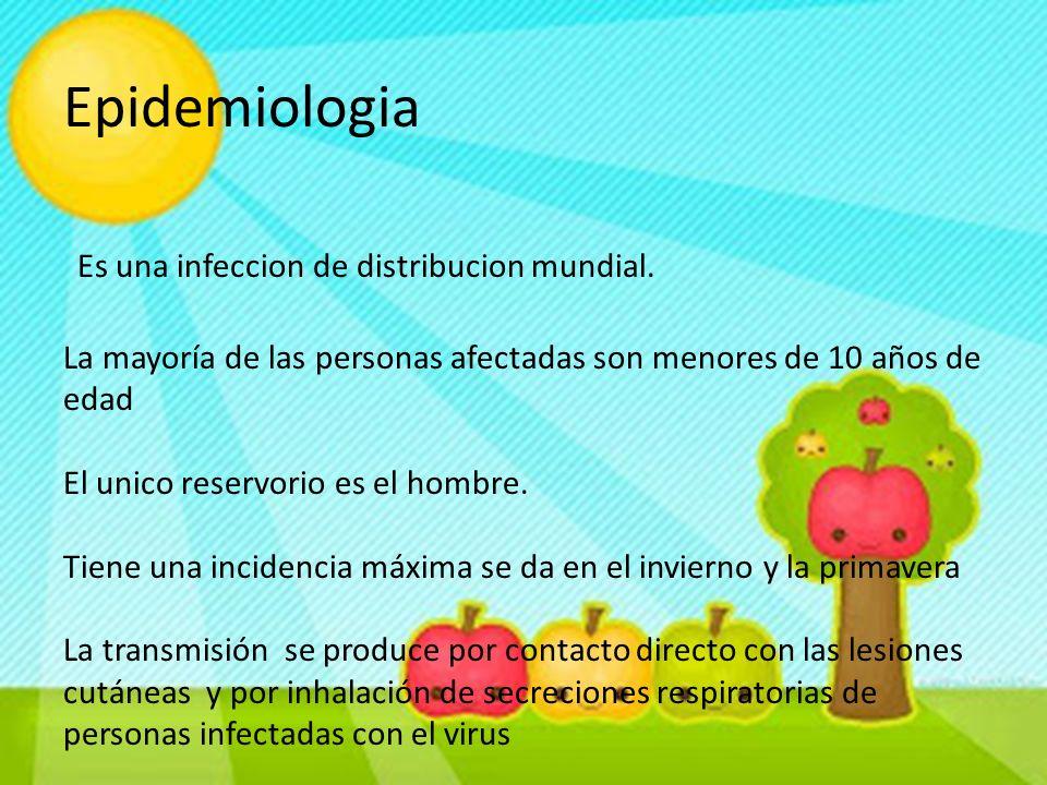 Epidemiologia Es una infeccion de distribucion mundial. La mayoría de las personas afectadas son menores de 10 años de edad El unico reservorio es el