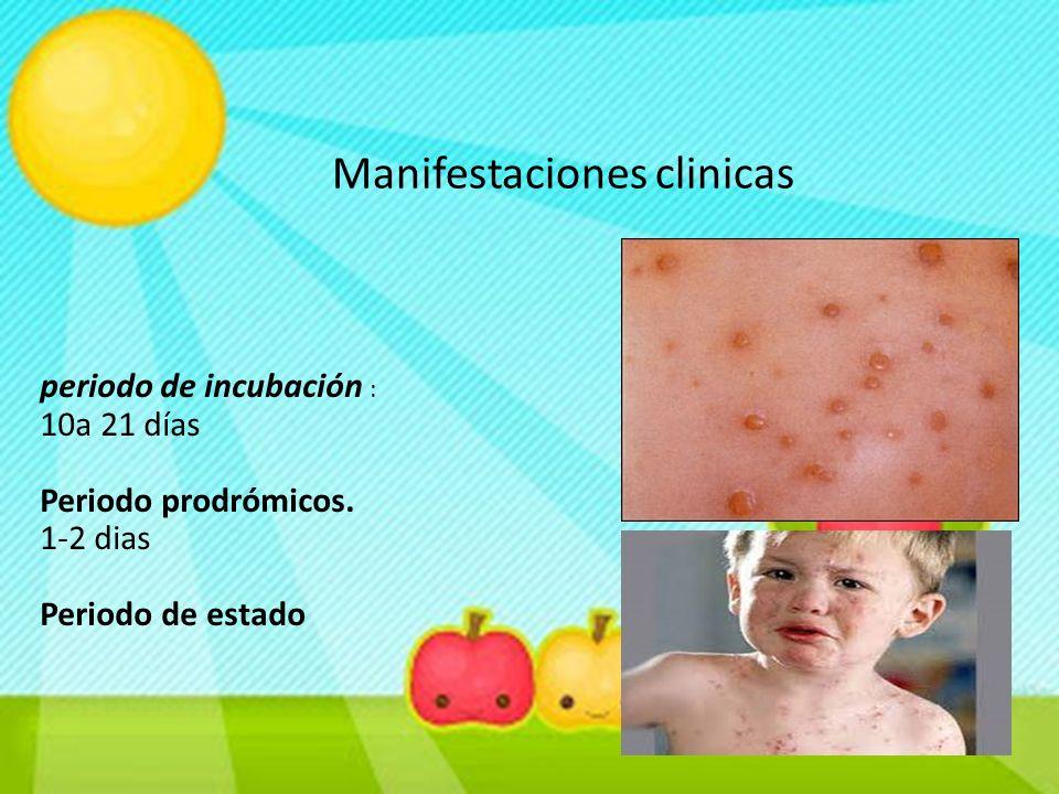 Manifestaciones clinicas periodo de incubación : 10a 21 días Periodo prodrómicos. 1-2 dias Periodo de estado