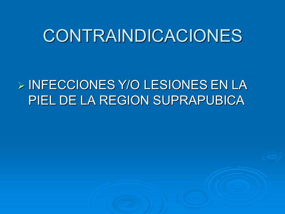INSTRUMENTAL Y MEDICAMENTOS NECESARIOS  EQUIPO COMERCIAL PARA PUNCION SUPRAPUBICA, EN SU DEFECTO SE REQUIERE:  PINZAS PARA ANTISEPSIA  PAÑOS DE CAMPO  AGUJAS HIPODERMICAS, JERINGILLAS  TROCAR PARA INTRODUCIR EL CATETER  CATETER  BOLSA COLECTORA  SOLUCIONES ANTISEPTICAS  LIDOCAINA AL 1%  SOLUCION SALINA AL 0,9%