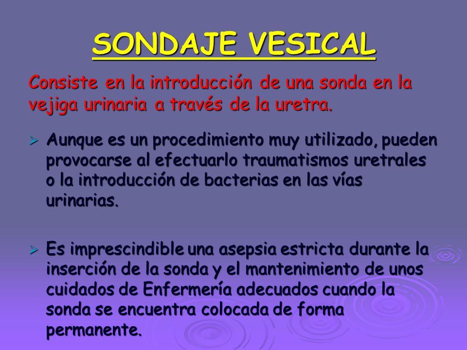 SONDAJE VESICAL Consiste en la introducción de una sonda en la vejiga urinaria a través de la uretra.  Aunque es un procedimiento muy utilizado, pued