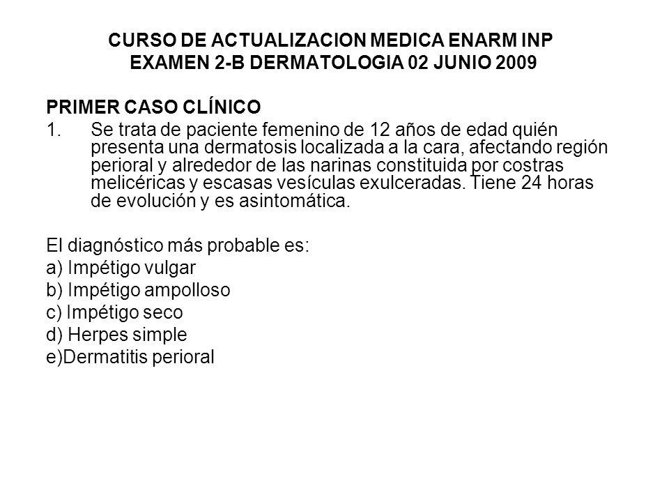 CURSO DE ACTUALIZACION MEDICA ENARM INP EXAMEN 2-B DERMATOLOGIA 02 JUNIO 2009 PRIMER CASO CLÍNICO 1.Se trata de paciente femenino de 12 años de edad quién presenta una dermatosis localizada a la cara, afectando región perioral y alrededor de las narinas constituida por costras melicéricas y escasas vesículas exulceradas.