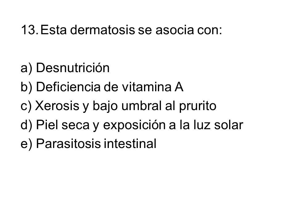 13.Esta dermatosis se asocia con: a) Desnutrición b) Deficiencia de vitamina A c) Xerosis y bajo umbral al prurito d) Piel seca y exposición a la luz solar e) Parasitosis intestinal