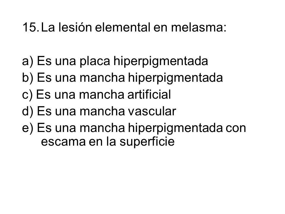 15.La lesión elemental en melasma: a) Es una placa hiperpigmentada b) Es una mancha hiperpigmentada c) Es una mancha artificial d) Es una mancha vascular e) Es una mancha hiperpigmentada con escama en la superficie