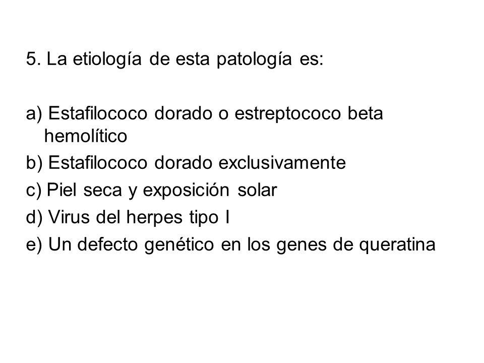 5. La etiología de esta patología es: a) Estafilococo dorado o estreptococo beta hemolítico b) Estafilococo dorado exclusivamente c) Piel seca y expos
