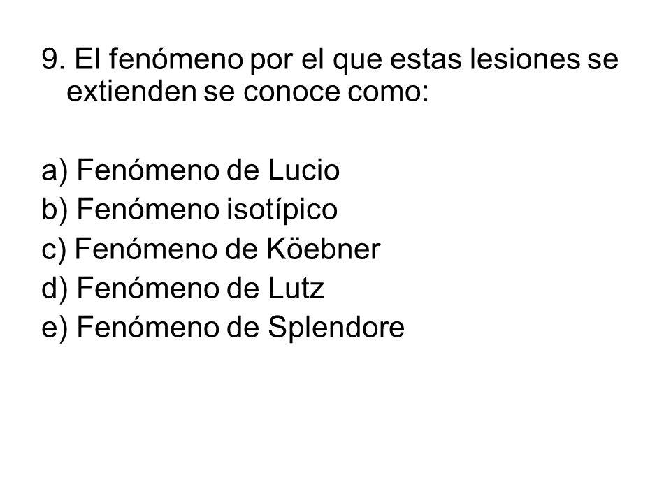 9. El fenómeno por el que estas lesiones se extienden se conoce como: a) Fenómeno de Lucio b) Fenómeno isotípico c) Fenómeno de Köebner d) Fenómeno de