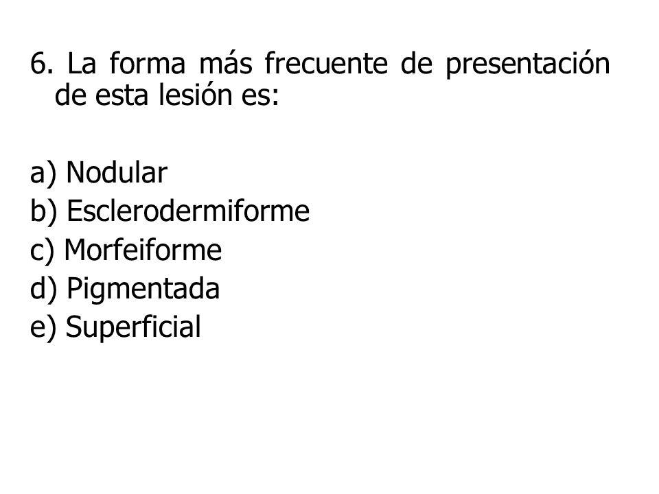 6. La forma más frecuente de presentación de esta lesión es: a) Nodular b) Esclerodermiforme c) Morfeiforme d) Pigmentada e) Superficial