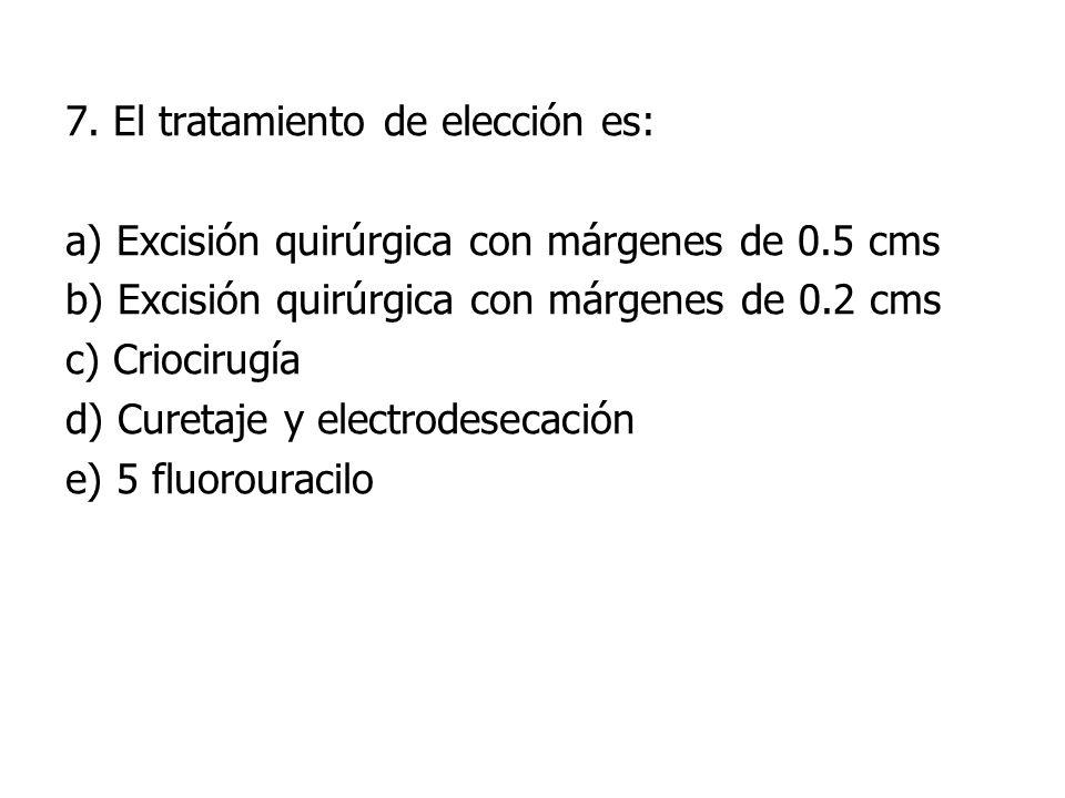 7. El tratamiento de elección es: a) Excisión quirúrgica con márgenes de 0.5 cms b) Excisión quirúrgica con márgenes de 0.2 cms c) Criocirugía d) Cure