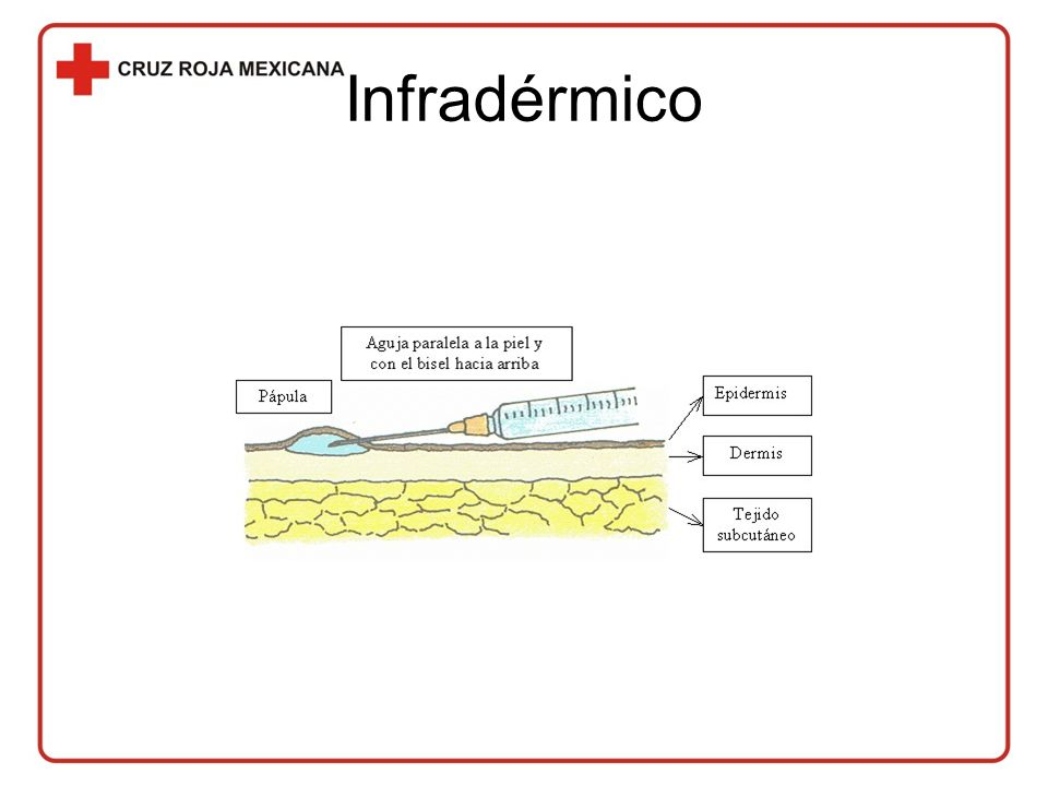 Infradérmico