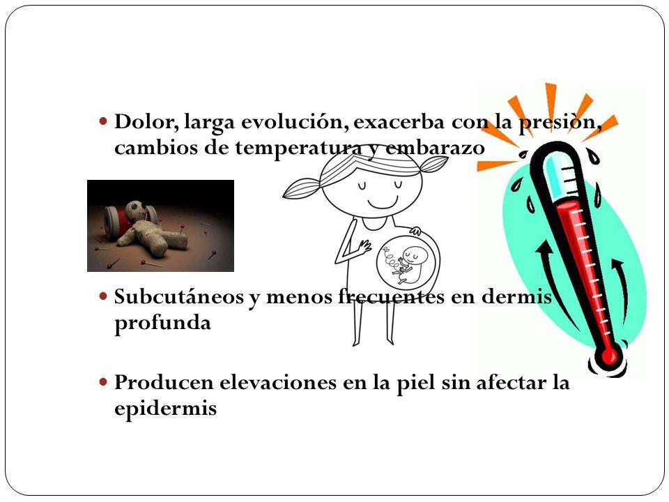 Dolor, larga evolución, exacerba con la presiòn, cambios de temperatura y embarazo Subcutáneos y menos frecuentes en dermis profunda Producen elevacio