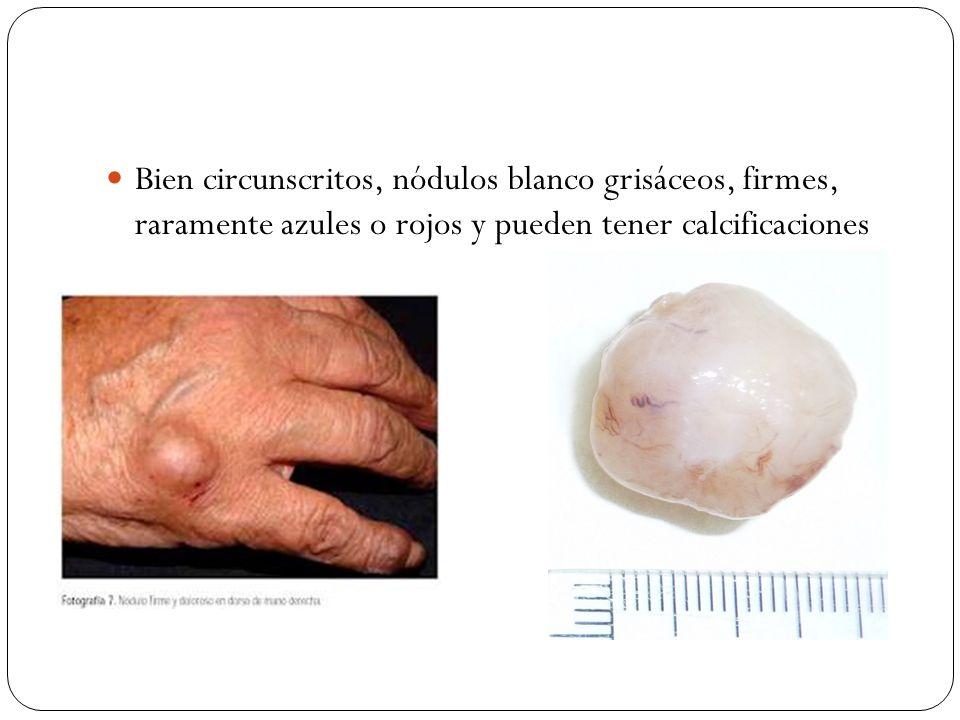 Bien circunscritos, nódulos blanco grisáceos, firmes, raramente azules o rojos y pueden tener calcificaciones
