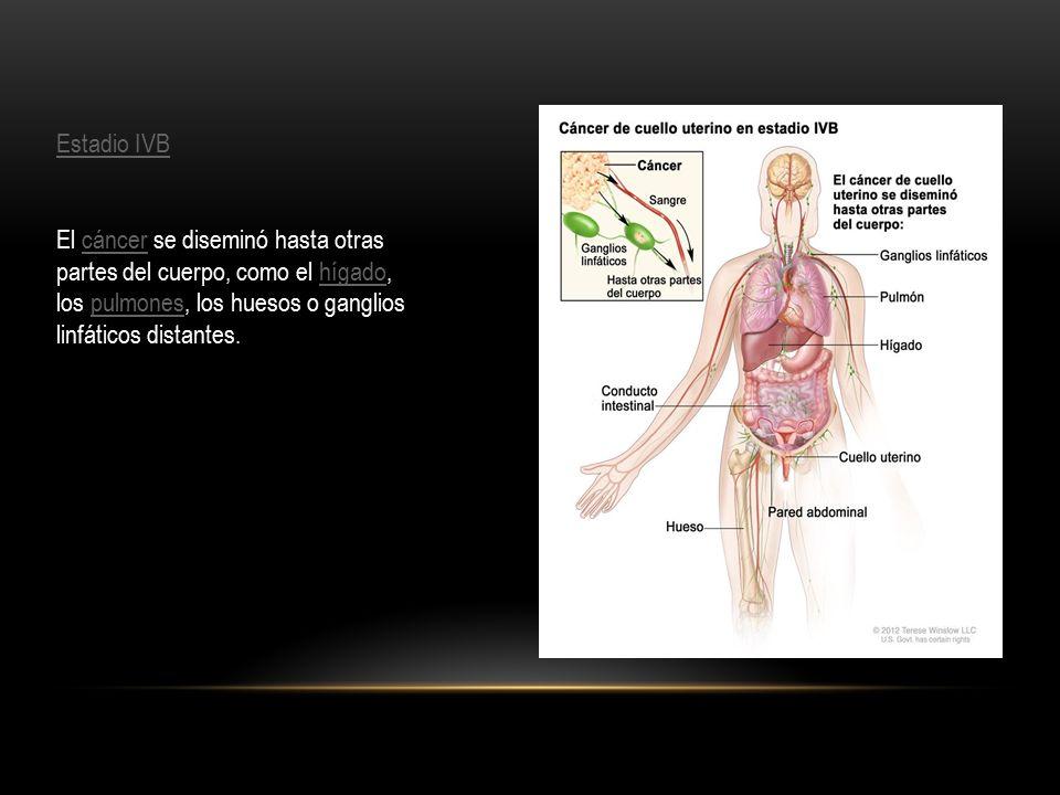 Estadio IVB El cáncer se diseminó hasta otras partes del cuerpo, como el hígado, los pulmones, los huesos o ganglios linfáticos distantes.cáncerhígadopulmones