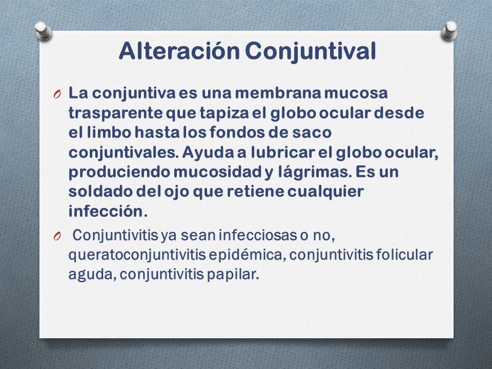 Alteración Conjuntival O La conjuntiva es una membrana mucosa trasparente que tapiza el globo ocular desde el limbo hasta los fondos de saco conjuntivales.